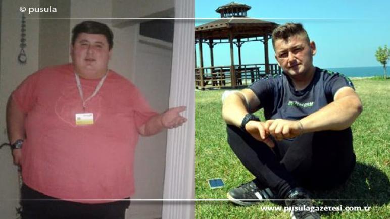 صورة شاب تركي يخـ.ـ سر 212 كيلو من وزنه خلال مدة قياسية من أجل حبيبته (فيديو)