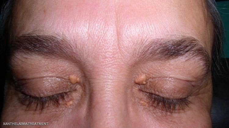 صورة علماء يكشفون فقاعات صغيرة على الجلد تنبه الى مـ.رض غير مرئي وينوهون الى أمر هام